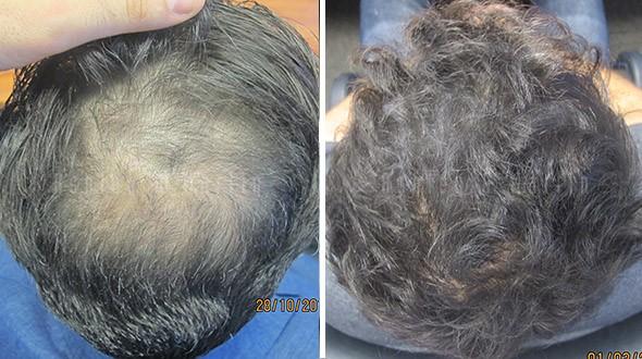 hair-loss-cause3