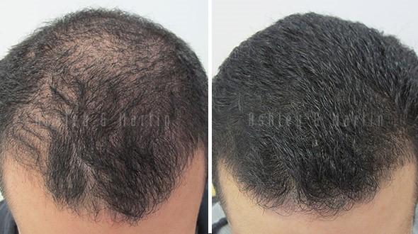 hair-loss-treatment1